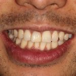 After Dark Tooth Bleaching at Nutting Dentistry in Knoxville, TN
