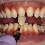 Color Matching Veneers at Nutting Dentistry Knoxville TN