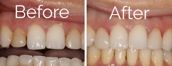 Cosmetic Bonding in Knoxville, TN